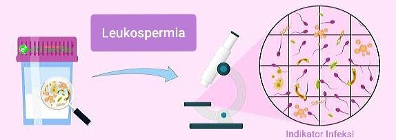 Leukospermia