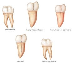 Teeth. Tooth Cavity and Crack Treatment
