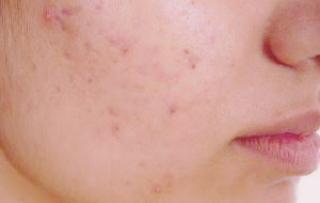 علاج حبوب الوجه - كيفية التخلص من حبوب الوجه بسرعة - طرق إزالة حبوب الوجه 2