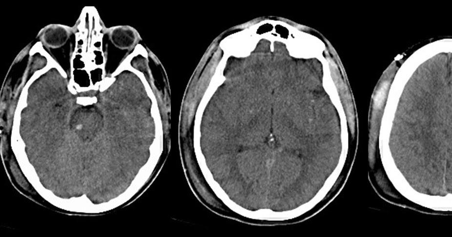 Dr Balaji Anvekar FRCR: Diffuse Axonal Injury CT Brain