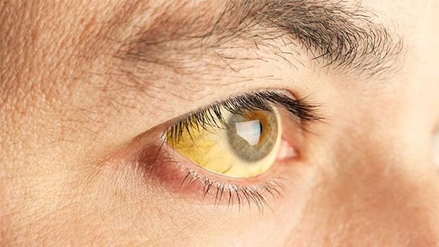 اعراض الصفراء عند الكبار واسبابه وطرق العلاج