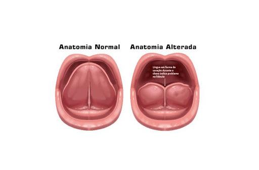 Frenectomía