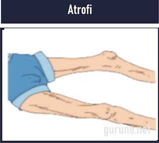 Artrofi adalah Kelainan otot yang mengecil, lemah, fungsi otot yang menurun. Hal ini disebabkan adanya penyakit polimielitis yang dapat merusakkan sel saraf pada otot.