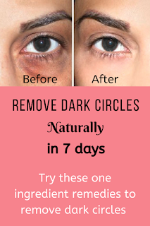 Remove dark circles in 7 days home remedy in hindi