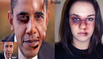 Bruise, কালশিরে