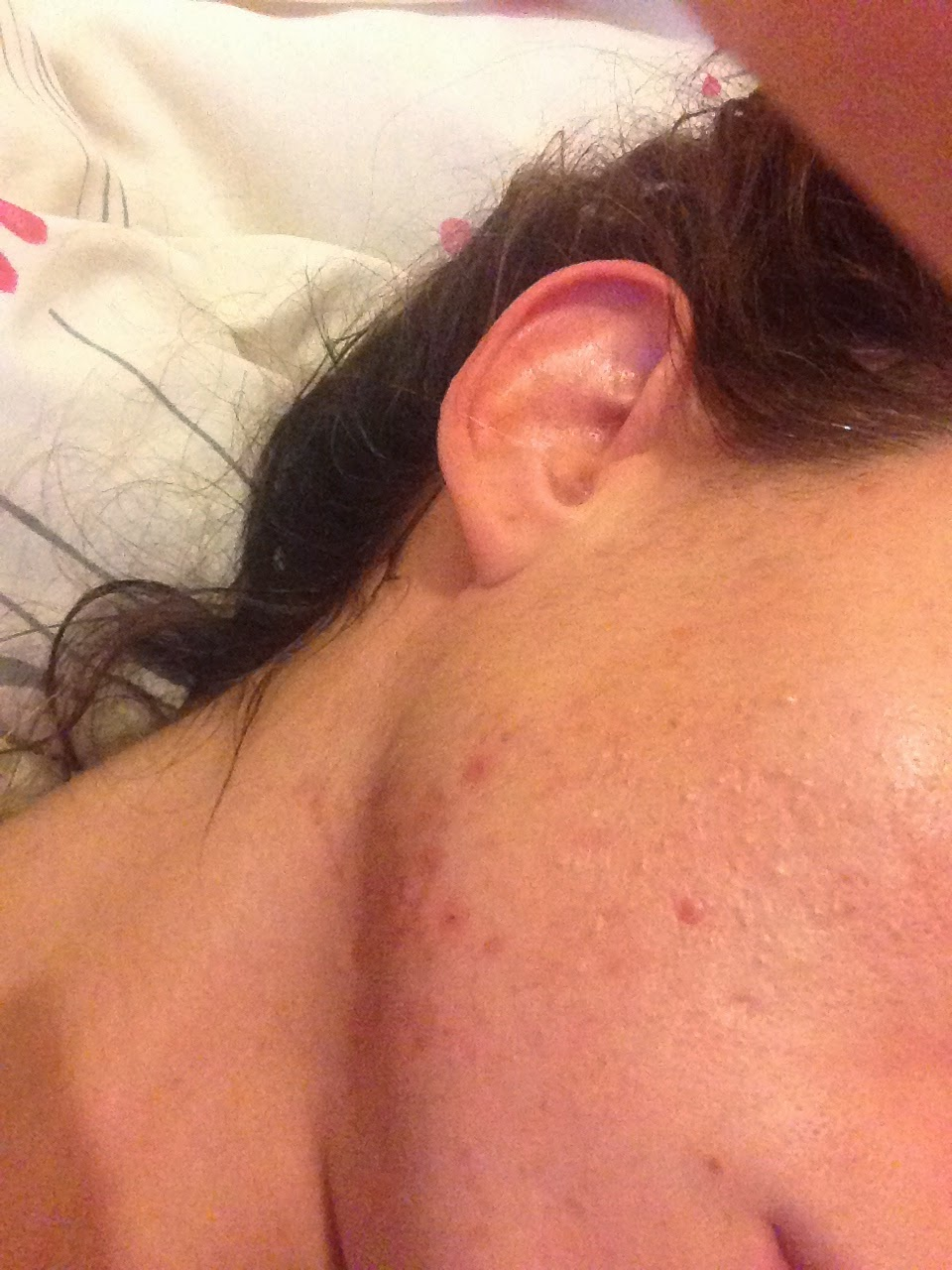 Musings of a London Beauty Addict: How I cleared my hormonal acne