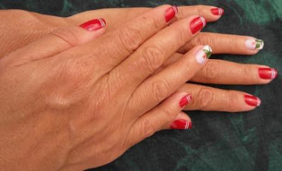 Know your health by looking at your nails