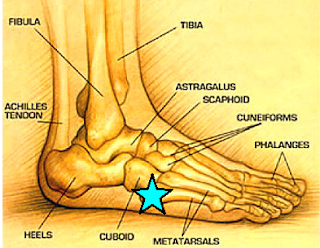 Strip Shoe Polish Off Shoes Pinky Toe Corn Surgery Foot Pain On Outside Of Foot From Running