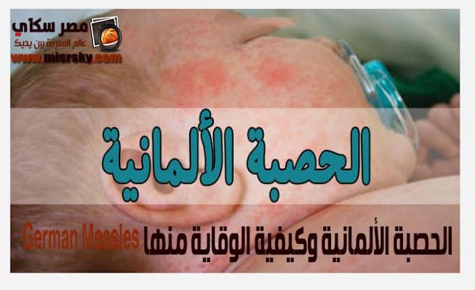 الحصبة الألمانية وكيفية الوقاية منها German Measles
