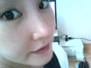 짱이뻐! - Revision Surgery? I Recommend Wonjin Plastic Surgery