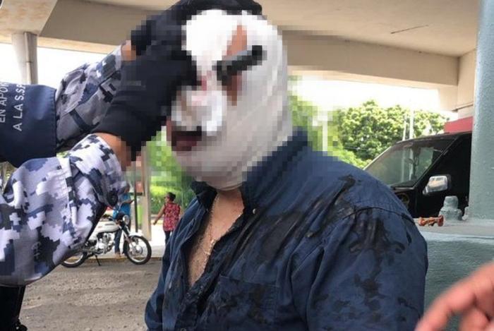 Video, Fuerte encontronazo entre dos sujetos por un estacionamiento en Veracruz, deja uno con cuchillo clavan en un ojo