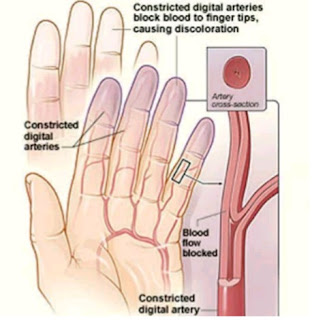 What Raynaud's Disease is, Its Symptoms And Alarming Health Risks