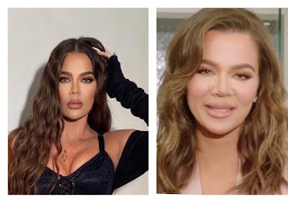 Khloe Kardashian face before and after surgery