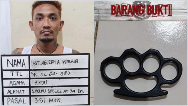Duh! Tak Terima Pacarnya Dilihat, Pria Ini Pukul Pemuda Pakai Rantai Kalung di Denpasar