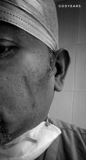 Doctor having marks after wearing N95 masks during Corona virus