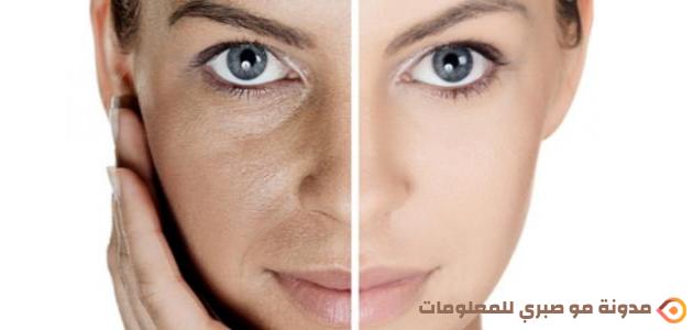 ماهو الكفل    كيفية إزالة البقع الداكنة من وجهك
