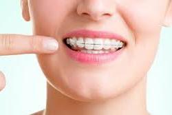 Pemasangan Kawat Gigi Untuk Memperbaiki Gigi Gingsul
