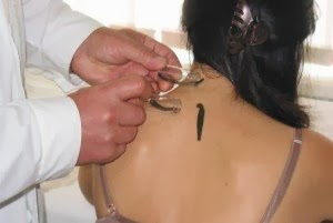 Hirudotherapy is treatment using medical leeches
