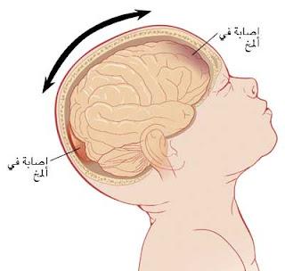 الية حدوث متلازمة هز الرضيع
