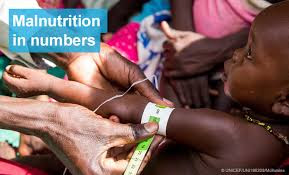 UK Donates £22m To Tackle Malnutrition In North-East