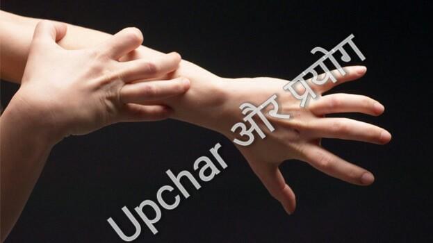 खुजली-त्वचा(Itching-skin)सम्बंधित विकार चिकित्सा
