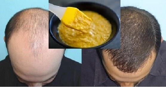 El pan con el huevo de la caída de los cabello