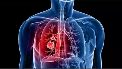 COPD (chronic obstructive pulmonary disease)