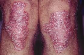 Image Penyakit Gatal Korengan Tak Kunjung Sembuh