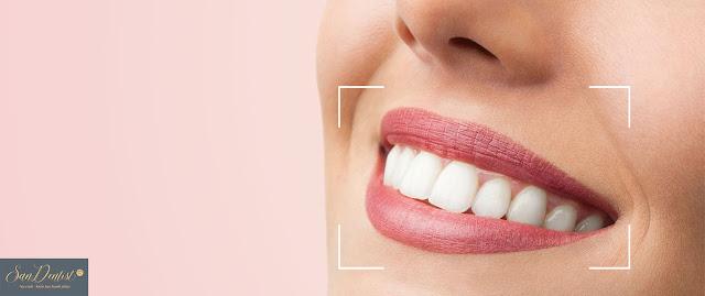Phẫu thuật cười hở lợi ở đâu tốt nhất hiện nay?