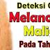 Awas Gejala Melanoma Maligna pada Tahi Lalat