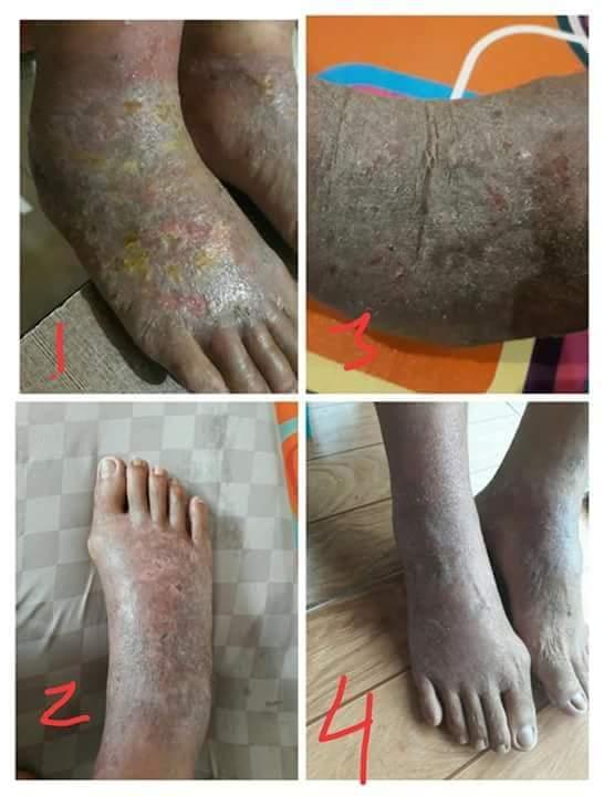 Pengobatan Pusar Bernanah Dan pengobatan kaki Busuk Pada Penderita Diabetes