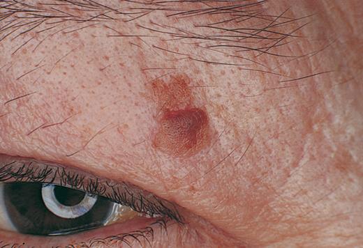 verrugas seborreicas tratamiento