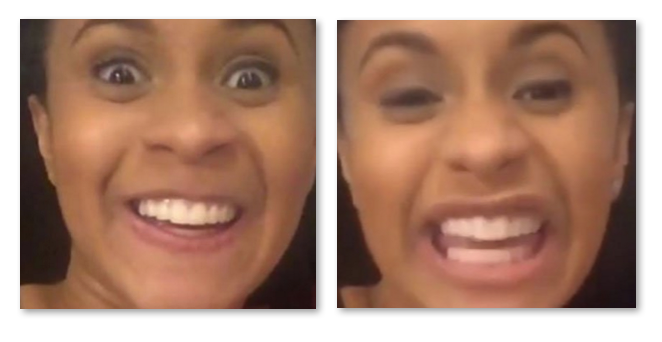 Cardi B Teeth: Cardi B Teeth Before And After Old Smile Vs New