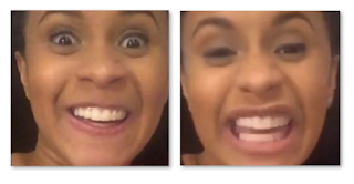 Cardi B Teeth Before And After Old Smile Vs New