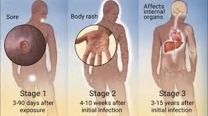 Mengobati Penyakit Sipilis dengan Tepat