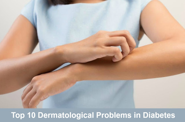 Top 10 Dermatological Problems in Diabetes