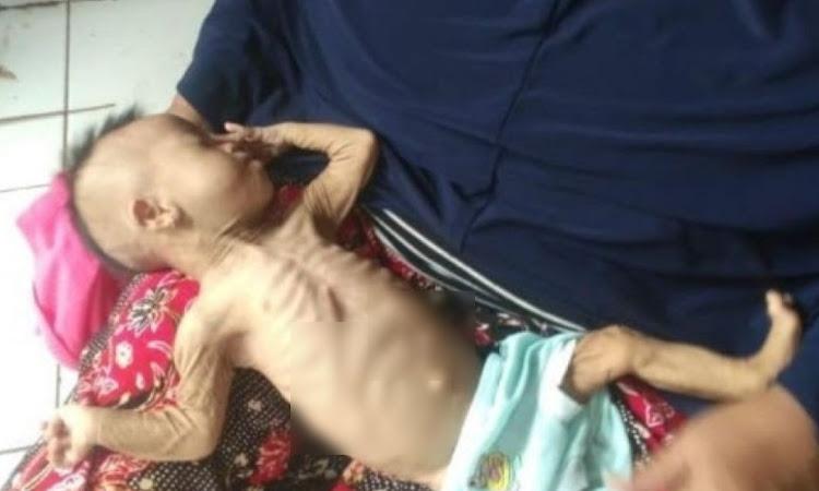 Ibu Kejam Ini Kurung Bayinya di Lemari Agar Matl Kelaparan, Saat Diselamatkan Kondisinya Memprihatinkan, Kurus Kering Tinggal Tulang dan Kulit