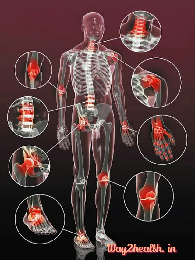 Osteoarthritis -   know the  possible causative factors and how to get rid from joint pain by some home remedies and lifestyle changes