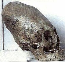 Хунски изкуствено деформиран череп-кръгов тип деформация