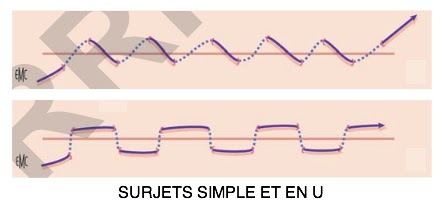 surjet retrait point suture fil infimier pansement