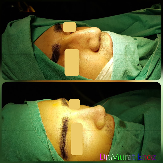 Male rhinoplasty- Nose job for men Istanbul Turkey