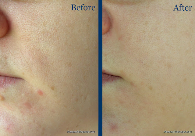 Before and after using Paula's Choice Clinical 1% Retinol Treatment for a month