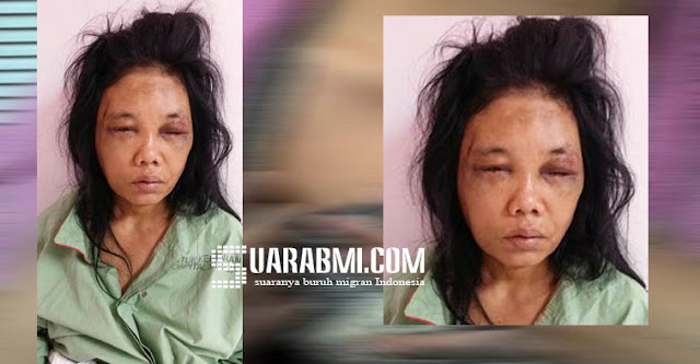 Wanita Ini Ditemukan Babak Belur Ditepian Jalan Selangor Malaysia, Adakah Yang Mengenalnya?