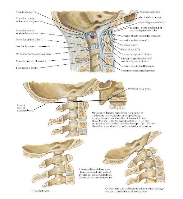 Atlantooccipital Junction Anatomy