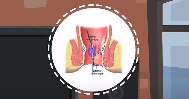 অর্শ বা পাইলস ঃ  কারণ লক্ষণ ও করণীয়-Hemorrhoids or Piles, Causes,Signs and symptoms and Treatment