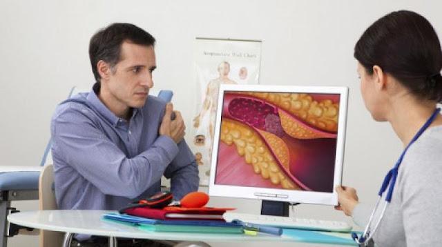 Nemilosrdni protivnici masti: proizvodi koji će spriječiti stvaranje krvnih ugrušaka