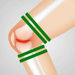 trening okluzyjny, trening z ograniczonym dopływem krwi do mięśni