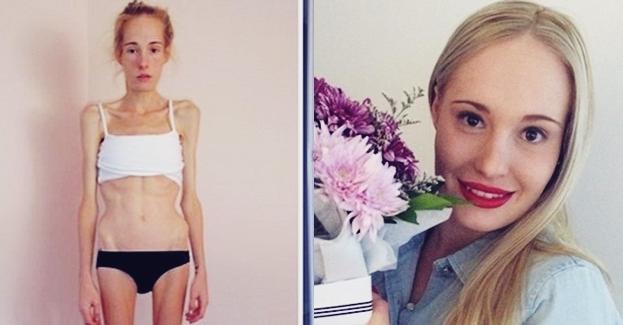 Definisi Anoreksia Nervosa | Apa Itu Anoreksia Nervosa.?