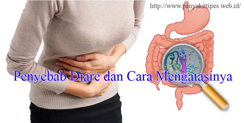 Penyebab Diare dan Cara Mengatasinya
