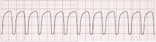 An ECG of ventricular tachycardia.